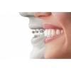 Брекеты — путь к ровным зубам и красивой улыбке!